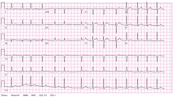 Atrial fibrillation, afib