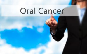 An Overview of Mouth Cancer