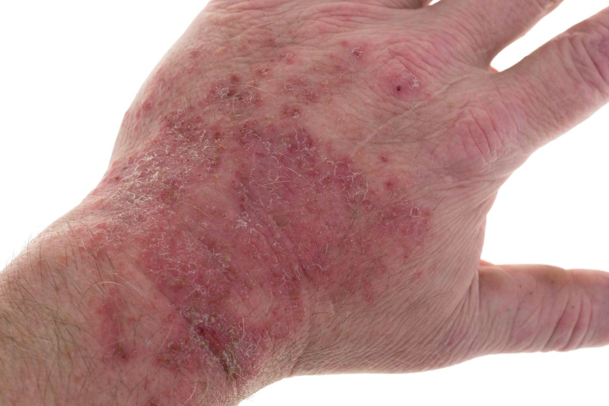Skin Rash: Important Things You Should Know